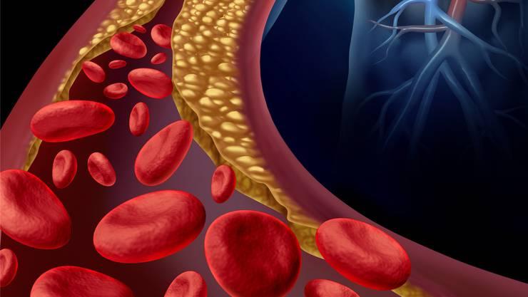 Bei den meisten Menschen verstopft Cholesterin wohl tatsächlich die Blut- gefässe. Statine präventiv zu nehmen, hilft aber selten, im Gegenteil.