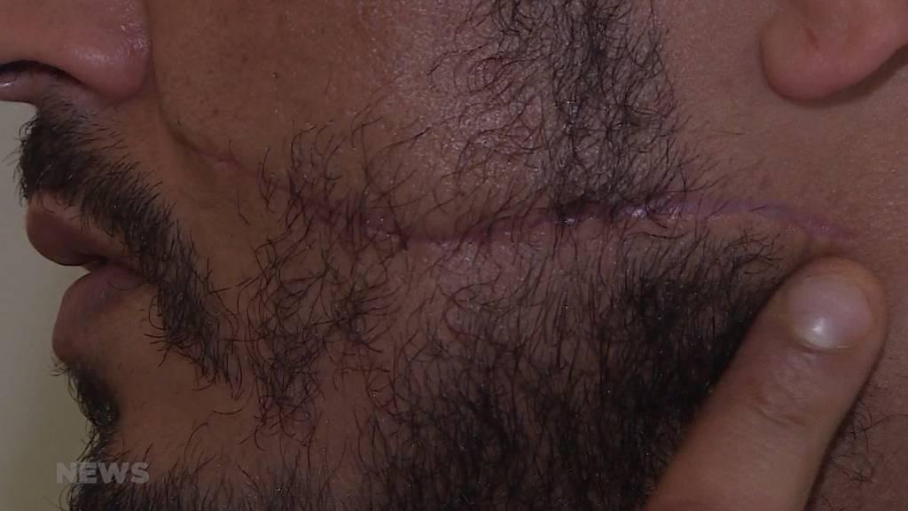 Messerattacke auf Velofahrer: Jetzt spricht das Opfer
