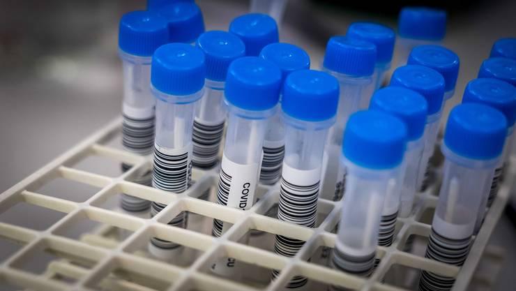 Am Dienstag meldet das BAG 700 neue Coronainfektionen bei rund 7200 Tests.