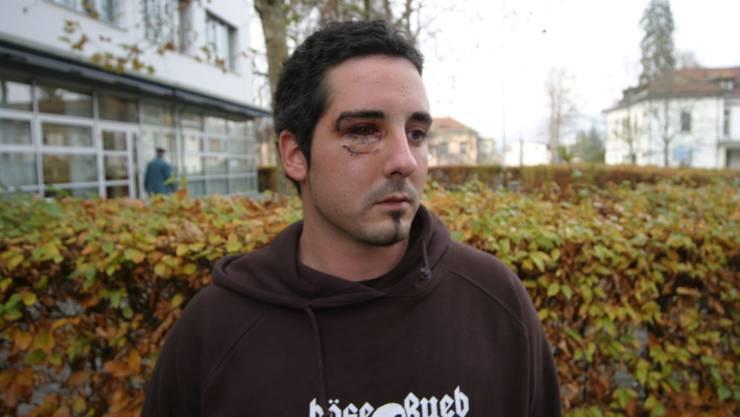 Das Opfer: Ramon Peter im Jahr 2007 vor dem Kantonsspital Aarau. (Bild: spi)