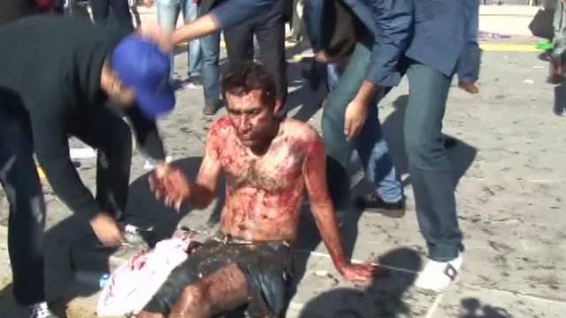 Schockierende Szenen in der Türkei