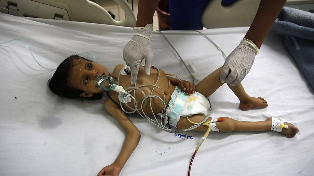 Unterernährtes Kind in Sanaa, Jemen: Nach Schätzungen von UNICEF sind im Jemen inzwischen zehn Millionen Kinder auf humanitäre Hilfe angewiesen.