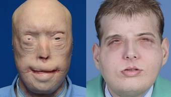 Nach Verbrennungen: Dieser US-Feuerwehrmann hat endlich ein neues Gesicht