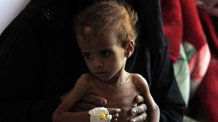 Ein jemenitisches Kind wird wegen Unterernährung in einem Spital in Sanaa behandelt. (Archivbild)
