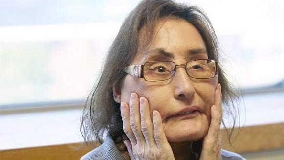 Frau mit erster US-Gesichtstransplantation gestorben