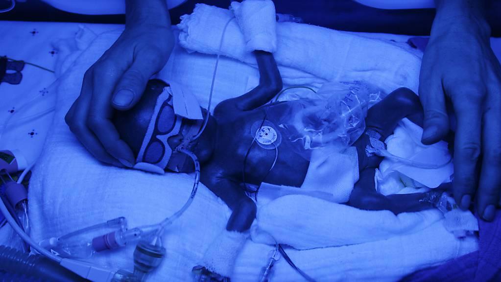 Ein frühgeborenes Baby, das auf einer Intensivstation mit Blaulicht bestrahlt wird: Eine Studie zerschlägt die Hoffnungen, dass die Gabe des Hormons EPO den Frühchen hilft.