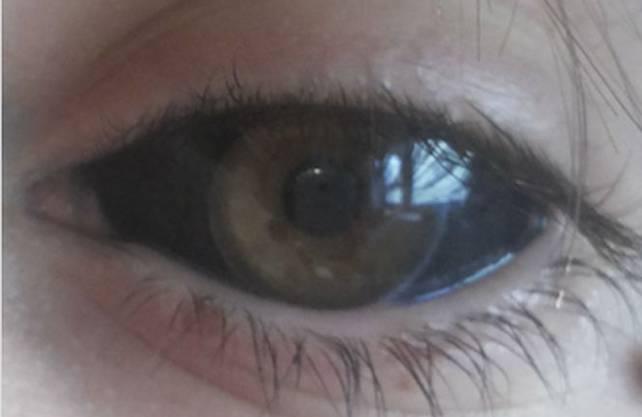 So sieht ein sogenanntes «Eyeball-Tattoo» aus