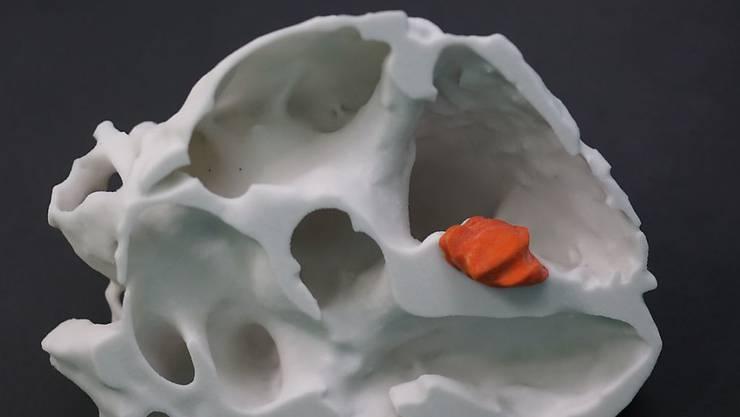 Das dreidimensionale Modell eines Herzens mitsamt dem Tumor hat in Basel eine komplizierte Herzoperation wesentlich erleichtert. Hergestellt wurde es mit einem 3D-Drucker.
