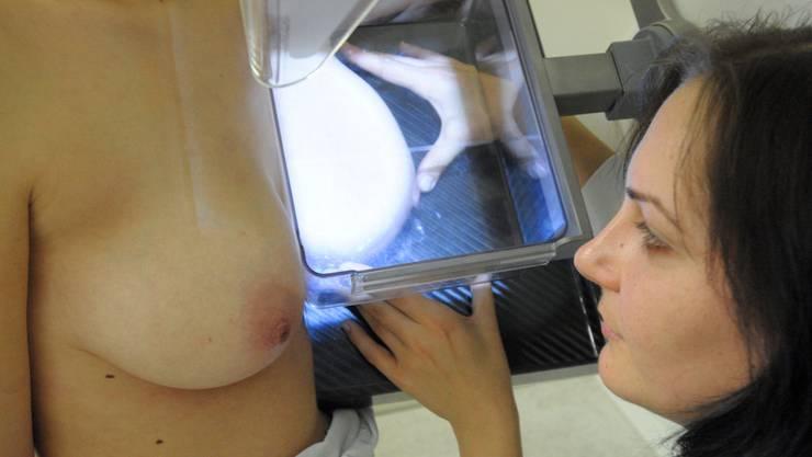 Streit um Mamografie-Screening. Soll es kostenlos sein?
