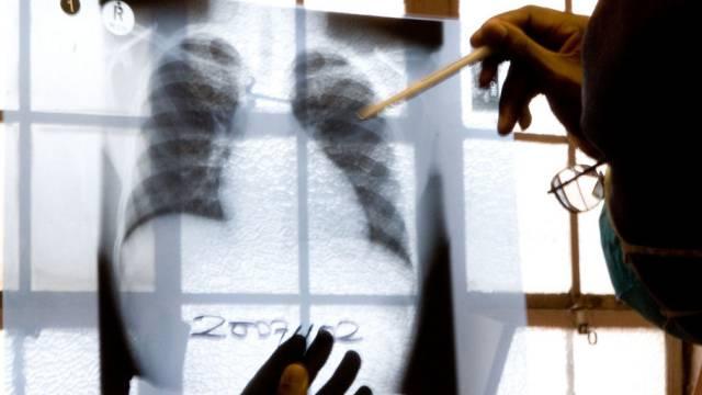 Tuberkulose-Bakterien befallen am häufigsten die Lungen. (Archiv)