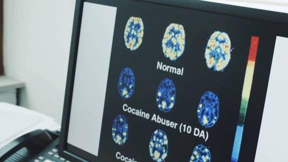 Rausch, Fitness, Depression: Wie Kokain das Hirn verändert