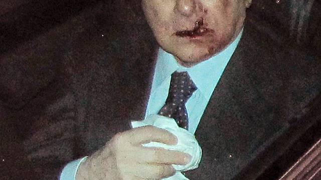 Silvio Berlusconi behielt das Bewusstsein, muss aber unter Beobachtung bleiben
