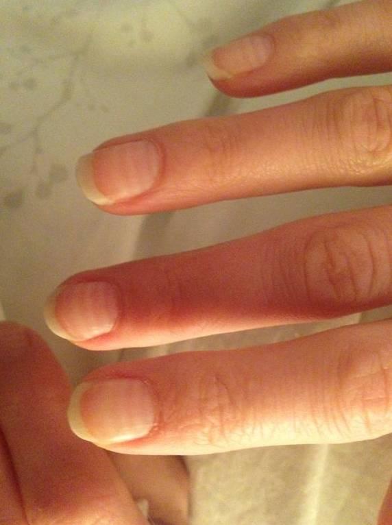 Jeder Chemozyklus hat einen Ring auf ihren Fingernägeln hinterlassen.