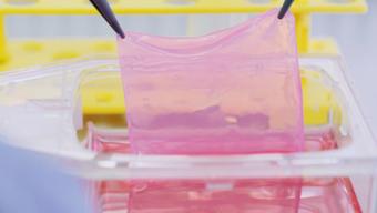 Das Startup Cutiss stellt individuell angepasste Flächen menschlicher Hauttransplantate her.