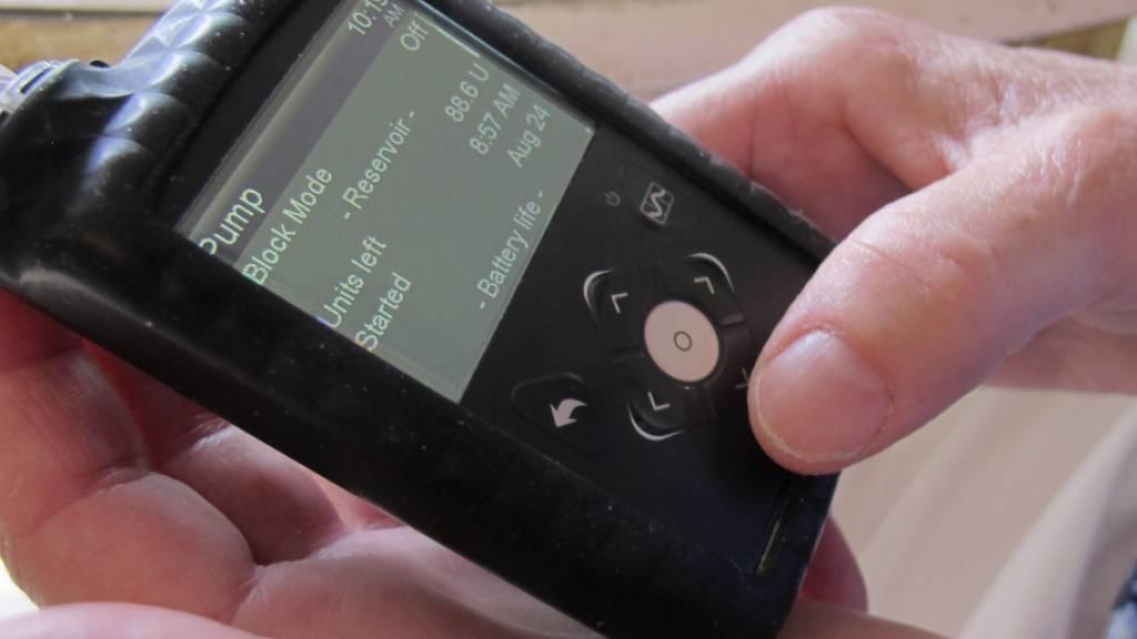 Eine Insulinpumpe erleichtert Diabetikern das Leben, indem sie sie von der Notwendigkeit der andauernden Kontrolle entlastet. Doch dazu muss man erst wissen, dass man die Krankheit hat. In der Schweiz ist Diabetes mellitus gemäss einer OBSAN-Studie in hohem Masse unterdiagnostiziert. (Symbolbild)