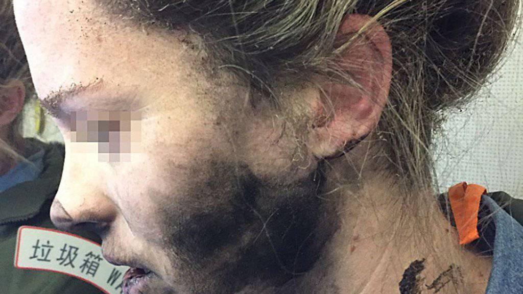 Verkohltes Gesicht und versengte Haare: Einer Australierin explodierte während eines Fluges der Kopfhörer.