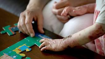 An der Schmetterlingskrankheit sterben viele Betroffene im Kindesalter.
