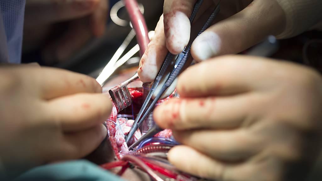 Mängel in der Herzchirurgie: Unispital Zürich verstärkt Kontrolle