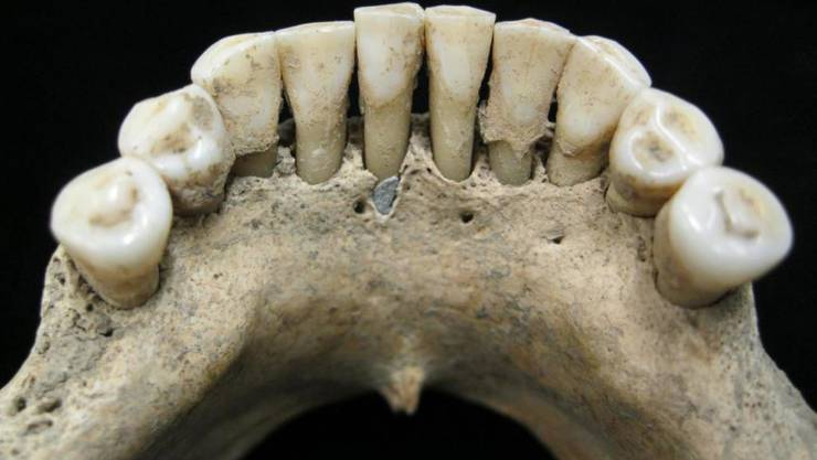 Der Zahnstein einer Frau aus dem Mittelalter verrät, dass sie mit dem wertvollen Farbpigment Ultramarin gearbeitet hat.