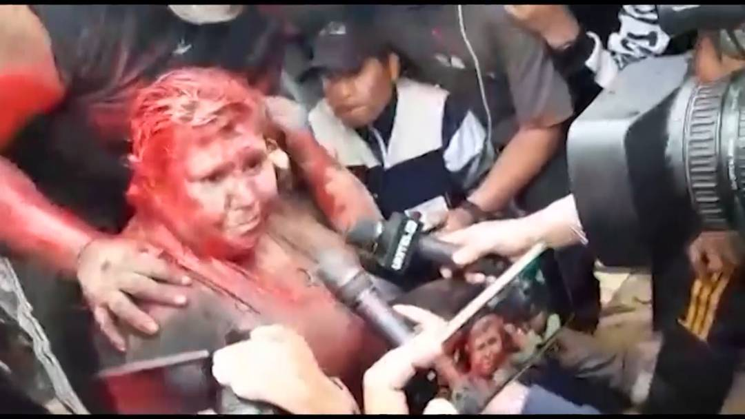Demonstranten überschütten Bürgermeisterin mit Farbe und schneiden ihre Haare ab
