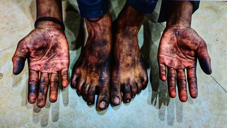 Ein Paar Hände und Füsse von befreiten Kindersklaven.