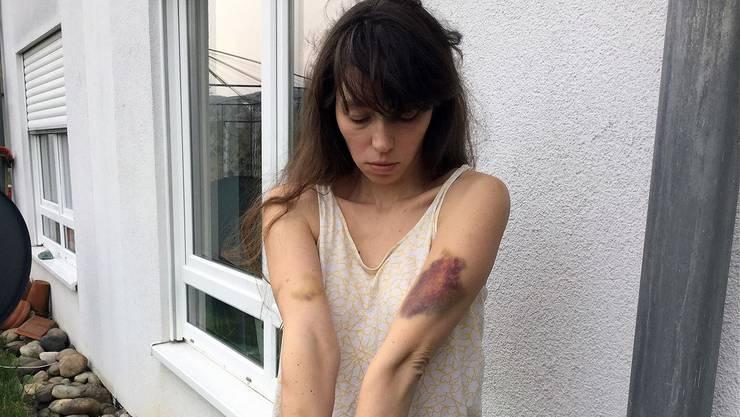 Natalya Sokol zeigt ihre Verletzungen.