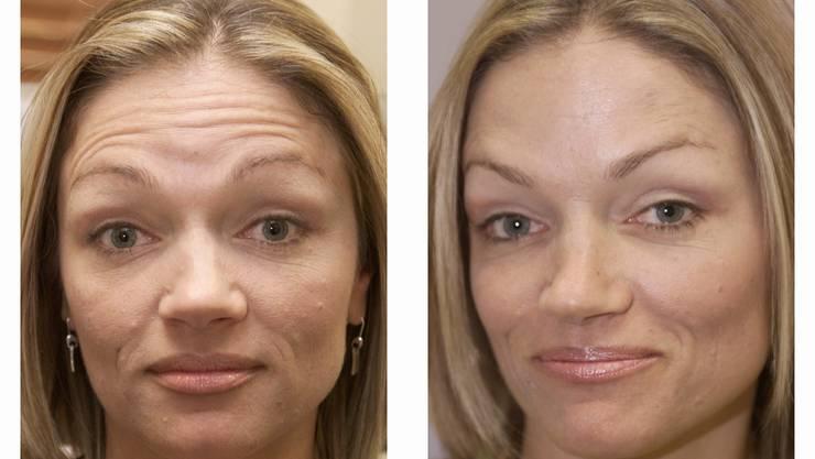 Botox-Patientin vor und nach der Behandlung