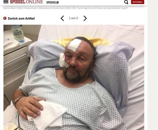 Das Fazit: Magnitzers Verletzungen stammen von dessen Sturz.