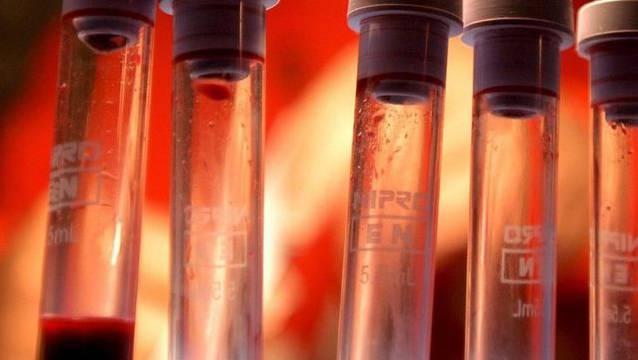 Blutplättchen spielen eine zentrale Rolle für die Blutgerinnung und Wundheilung.