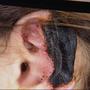 Opfer des Schönheitschirurgen