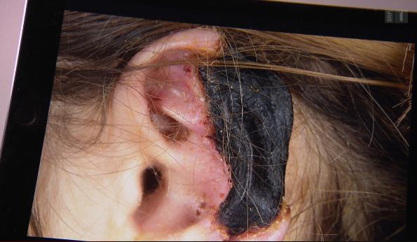 Das Gewebe der Ohren wurde schwarz und faulte schliesslich ab.