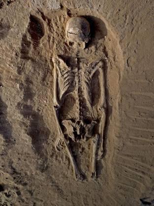 Dieses Skelett gehört zu einer Frau, die schwer verletzt wurde.