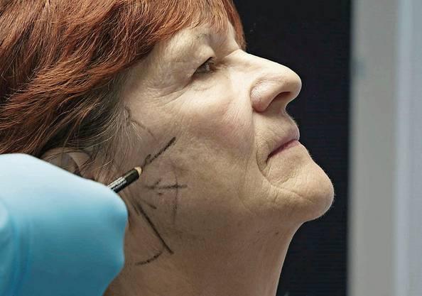 Der Arzt zeichnet ein, was er beim Facelifting machen will.
