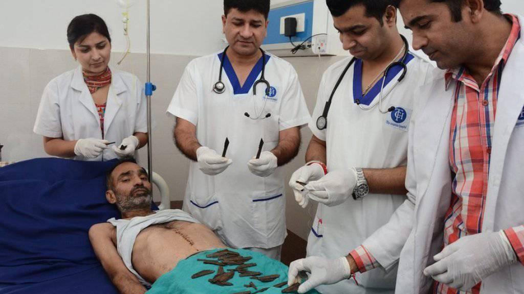 Ein indischer Polizist hat innert zwei Monaten 40 Messer geschluckt. Nach einer fünfstündigen Operation konnten ihn die Ärzte von der Masse im Magen befreien.