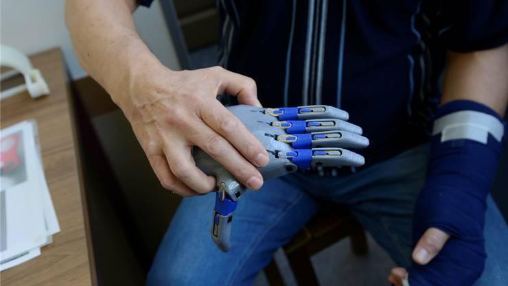 Erlaubt es, wieder greifen zu können: Die Hand aus Buchers 3-D-Drucker.
