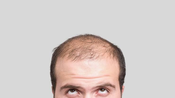Hilft Obst oder doch besser Zwiebeln gegen Haarausfall?