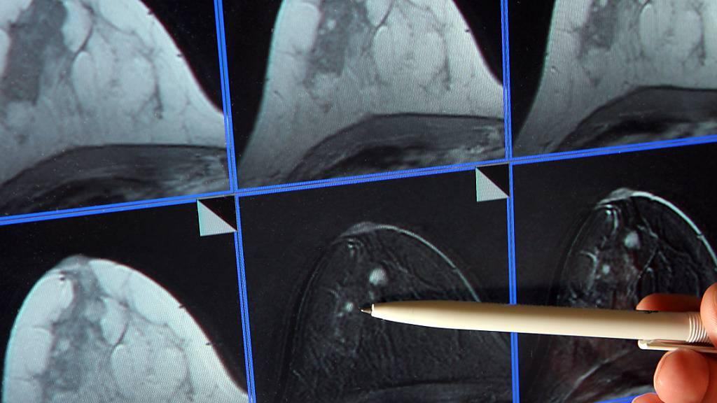Bildschirmdarstellung einer Magnetresonanz-Mammographie. Dabei ist ein winziger Tumor in der Brust einer Patientin zu sehen. (Archivbild)