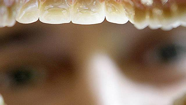 Patienten waren bei falschem Zahnarzt (Archiv)