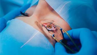 Donna Strickland und Gérard Mourou machten Laserkorrekturen von Sehfehlern möglich.Shutterstock