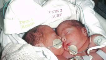 Die siamesischen Zwillinge Rosie und Ruby nach ihrer erfolgreichen Trennung