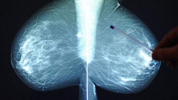 Ein neues Verfahren erlaubt es, dem Stoffwechsel von Brusttumoren zuzusehen. Das kann positive Auswirkungen auf die Behandlung haben. (Symbolbild)