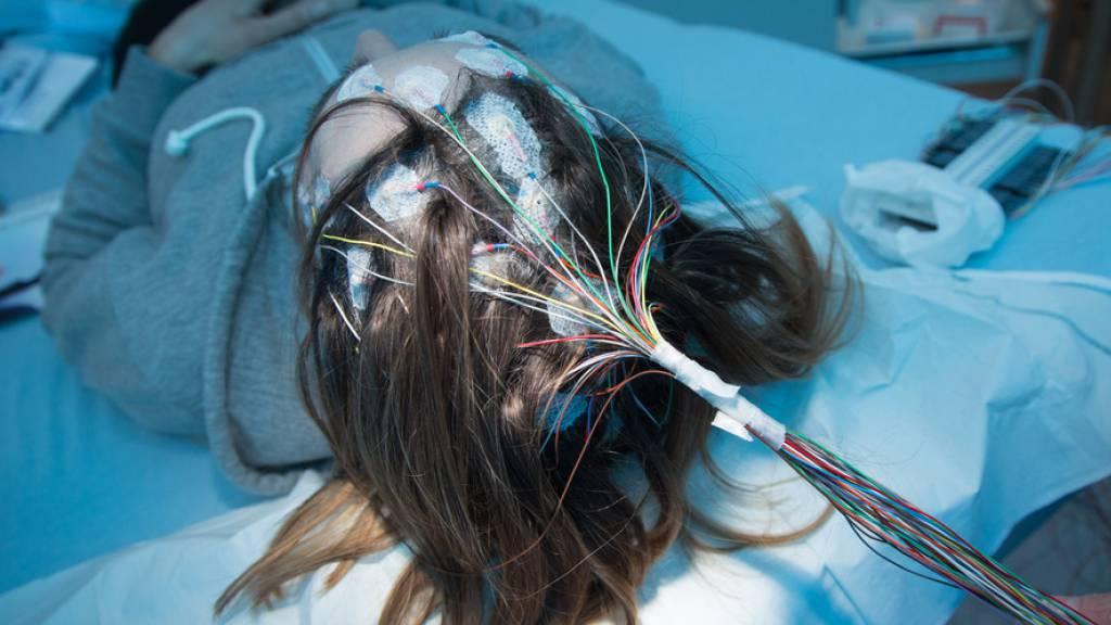Mittels Elektroden auf der Kopfhaut können Forschende Gehirnströme messen. (Symbolbild)