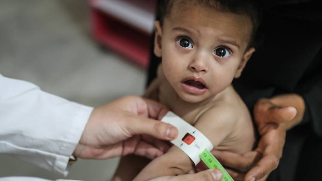 ARCHIV - Die Welthungerhilfe warnt vor einer Zunahme von Hungersnöten (im Bild: unterernährtes Kind in Syrien). Foto: Anas Alkharboutli/dpa