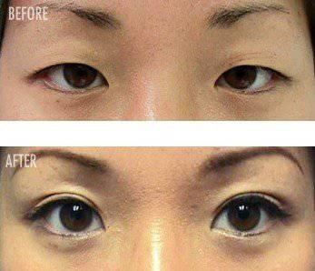 Vor und nach einer Augenlidoperation (https://politicsoffashionuiuc.wordpress.com/2011/09/28/double-eyelid-surgery/)