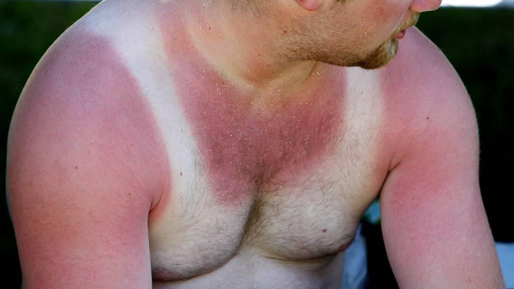 Rüebli essen hilft gegen Sonnenbrand