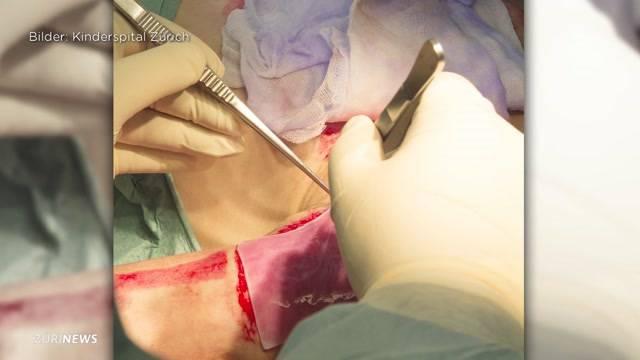 Labor-Haut soll Kinder retten