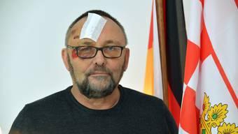 11.01.2019, Bremen: Frank Magnitz, Landesvorsitzender der AfD Bremen, sitzt in Bremer AfD-Buero. Magnitz wurde am 07.01.2019 von unbekannten Taetern angegriffen. (KEYSTONE/DPA/Michael Bahlo)
