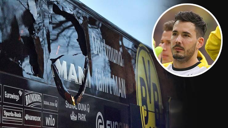 Fünf Tage nach dem Anschlag auf den BVB-Mannschaftsbus spricht Torhüter Roman Bürki (kleines Bild) über die schrecklichen Momente.