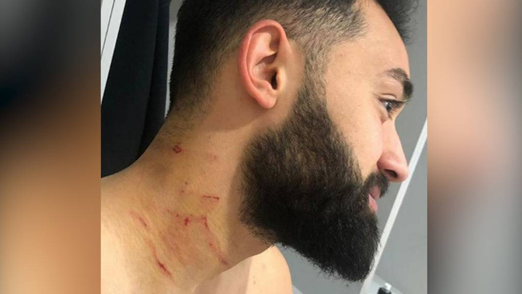 Skandal bei Fussballspiel in der Türkei