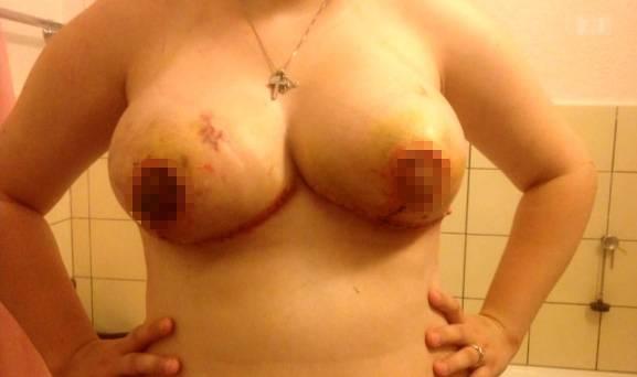 Dieser Patientin starben nach der Brustverkleinerung die Brustwarzen ab.